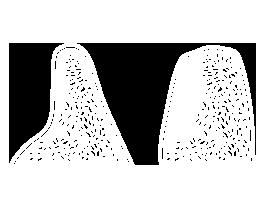 kieferknochen_aufbau